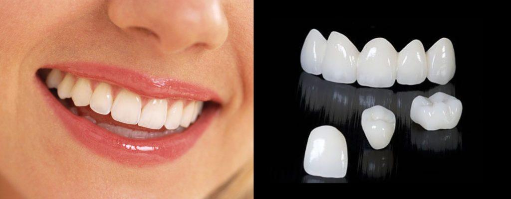 Зачем ставить коронки на зубы?