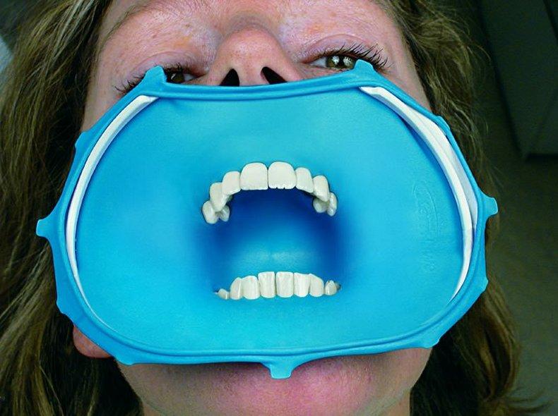 Зачем при лечении зубов нужен коффердам и микроскоп?