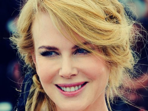 Виниры - голливудский метод сделать свою улыбку ослепительной