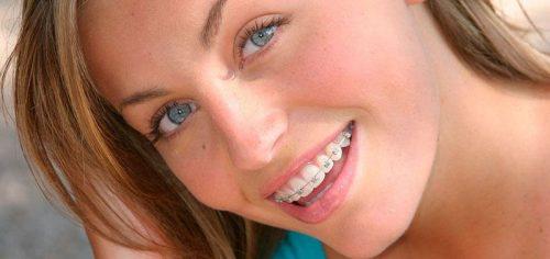 Брекеты сделают улыбку не только красивой, но и здоровой